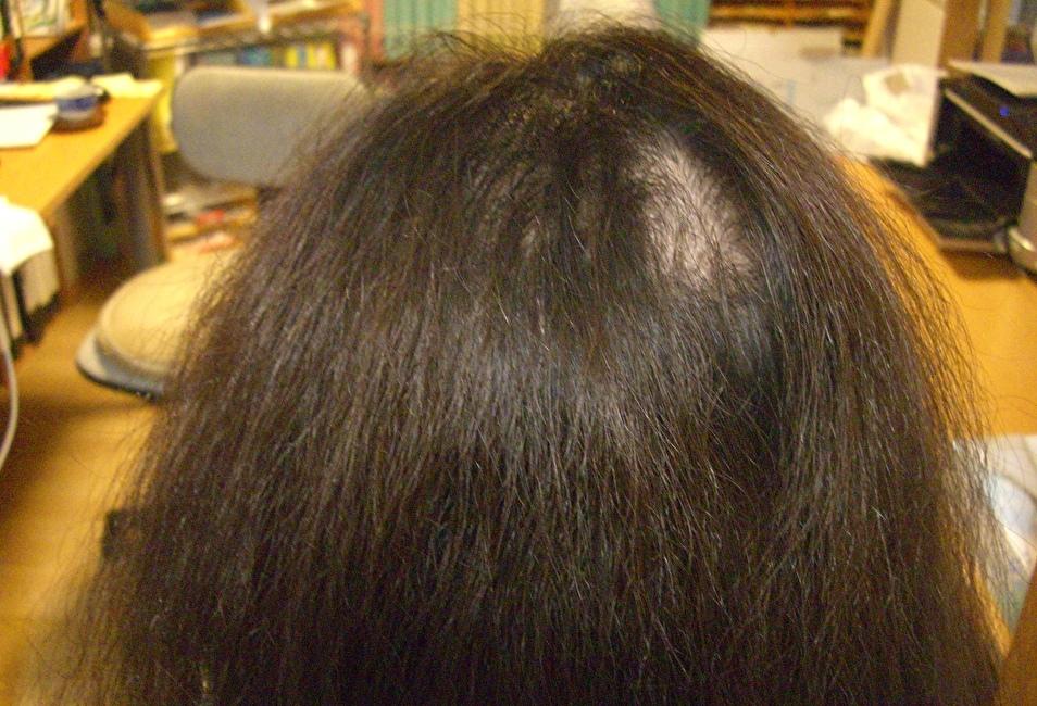 カラーの繰り返しで髪のがバサバサ