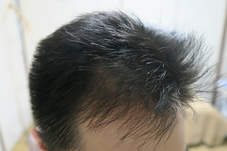 Eさんのケア後の生え際の毛の改善