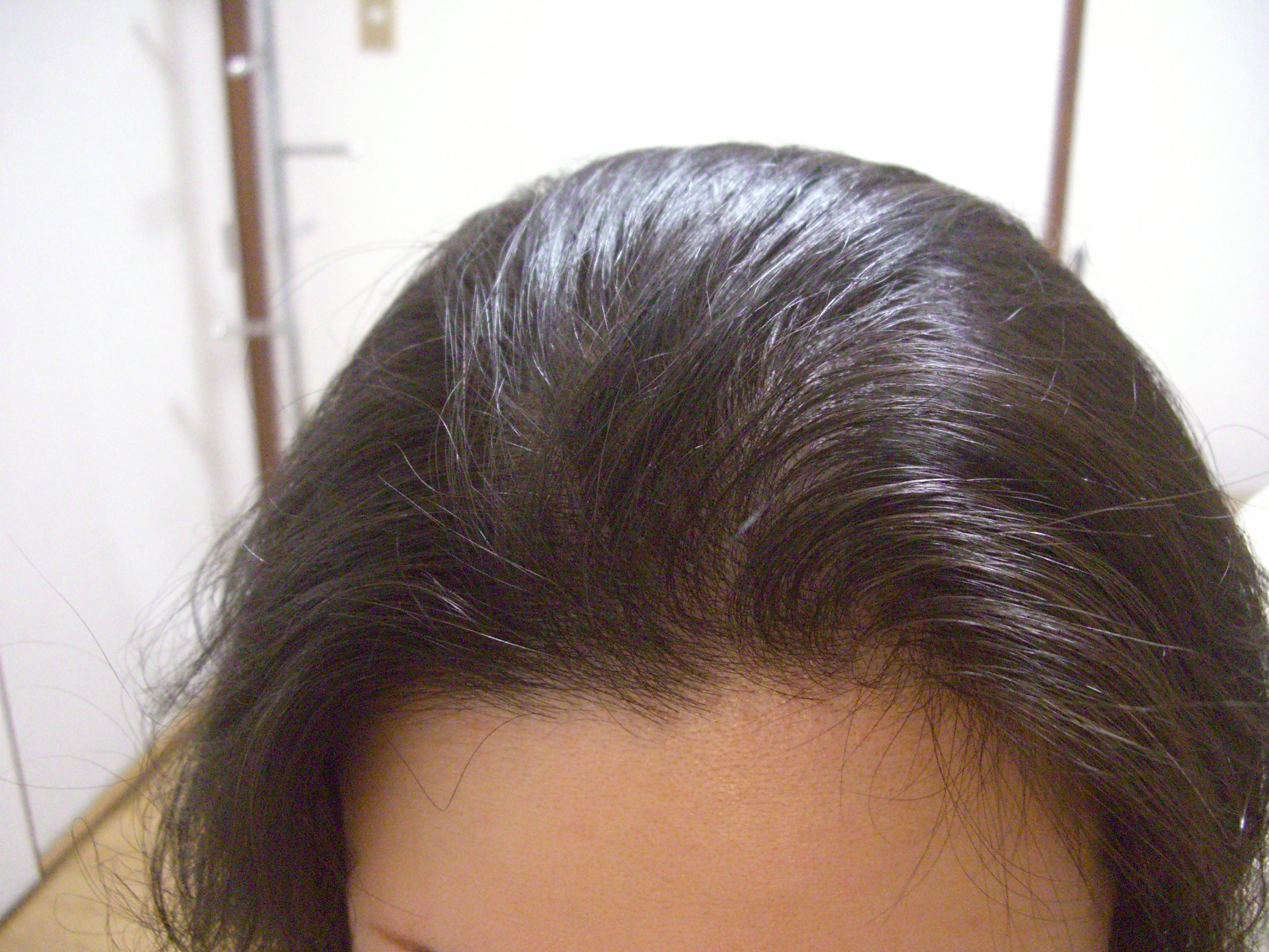 Bさんのケア後の毛と頭皮