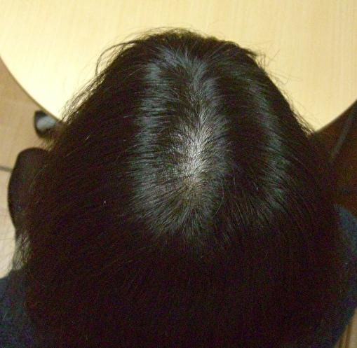 Fさんのケア後の頭頂部の改善