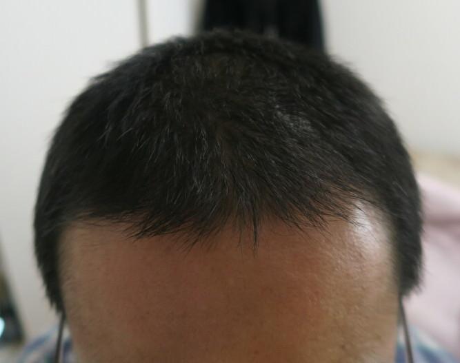 Cさんのケア後の頭皮と毛