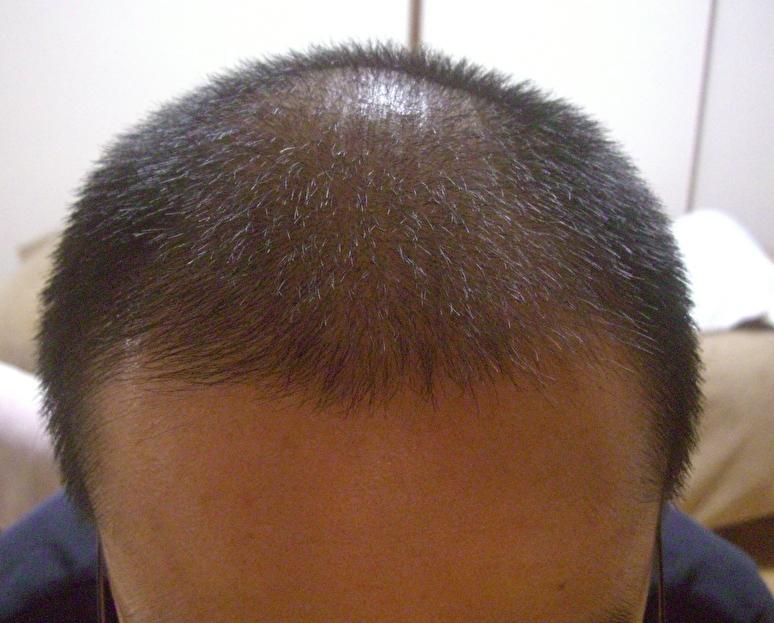 Cさんのケア前の頭皮と毛